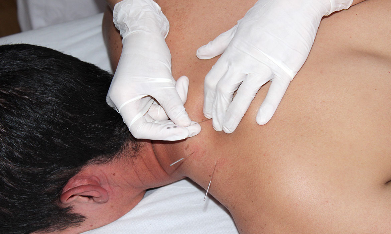 clinica-punicion-seca-acupuntura-fisioterapia-torrevieja